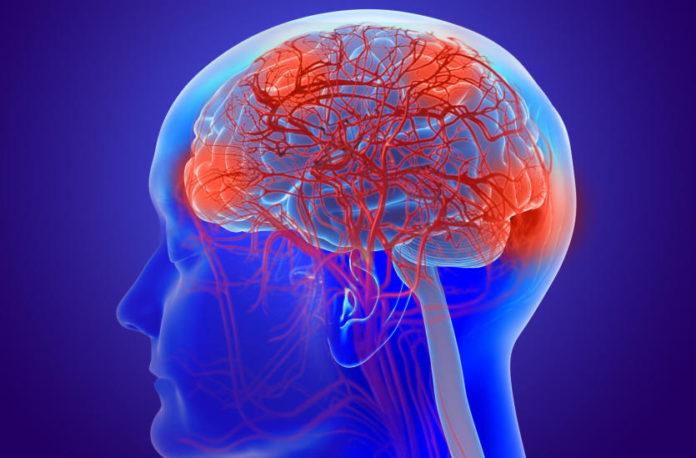 Przyczyny Alzheimera